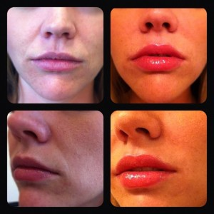 Before and Dr. Rose used BeloTero dermal filler to treat smile lines.